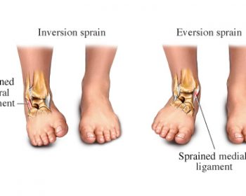 inversion-and-eversion-sprains1